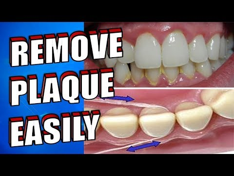NATURALLY REMOVE DENTAL PLAQUE EASILY IN 5 MINUTES AT HOME WITHOUT VISITING THE DENTIST