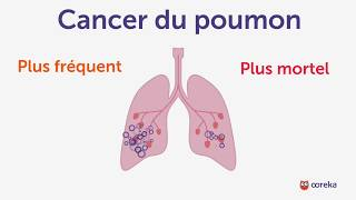 Cancer du poumon - Ooreka.fr