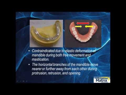 Denture Repair, Another Look