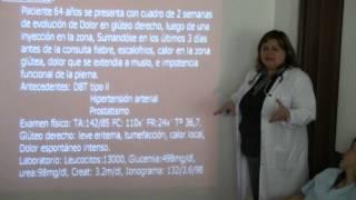 """Manejo de fascitis necrotizante"" Dra. Marta López"