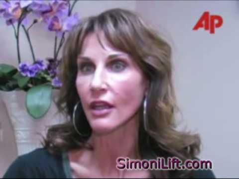 Dr. Simoni Discusses the Simoni Facelift on Associated Press