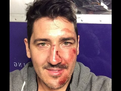 NKOTB 05-09-2015 Jonathan Knight onstage with broken nose in LA, The Main Event