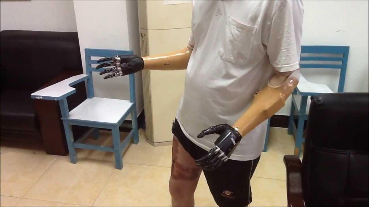 德林義肢-電子手Bebionic3 - YouTube