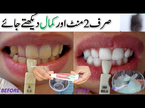 in-just-2-minutes---teeth-whitening-at-home---turn-yellow-teeth-to-pearl-white-and-shine