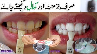 In Just 2 Minutes - TEETH WHITENING At Home - Turn Yellow Teeth To Pearl White and Shine