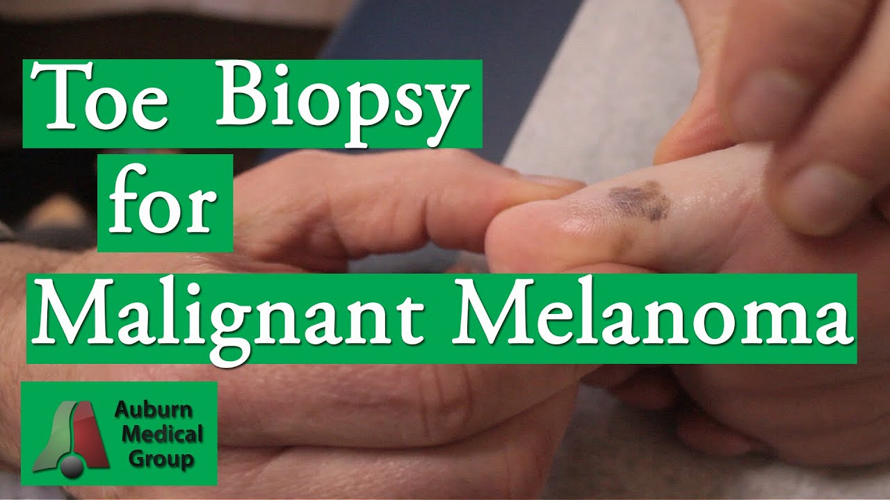 Toe Punch Biopsy to Test for Malignant Melanoma | Auburn Medical ...