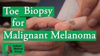 Toe Punch Biopsy to Test for Malignant Melanoma | Auburn Medical Group