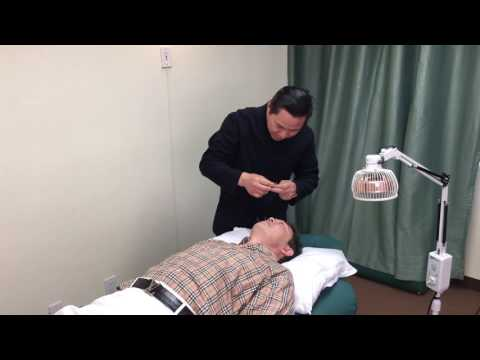Acupuncture facelift at the Art of Wellness