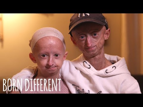The Brother And Sister Who Age Too Fast | BORN DIFFERENT