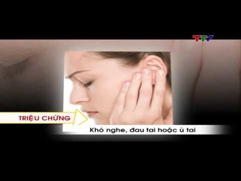 Nhận biết và điều trị sớm Ung thư vòm họng