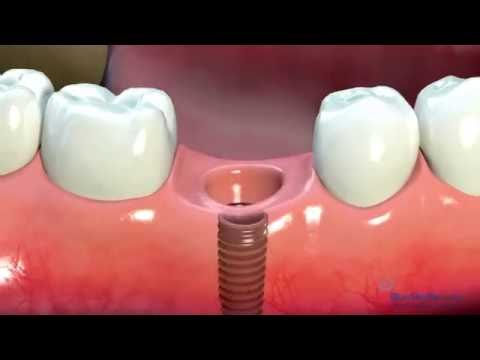 Dental Implants  - Australian Dentists Clinic