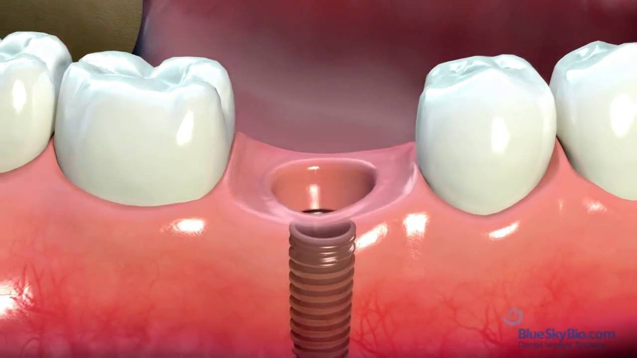 Dental Implant | Guide on Dental Implants | Cost, Procedure & Photos