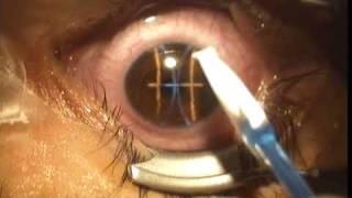 Epi-Lasik of my right eye
