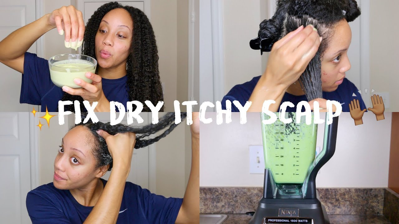 Diy Hair Mask For Dry Hair Get Rid Of Dry Itchy Scalp Youtube
