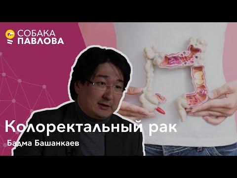 Колоректальный рак - Бадма Башанкаев // полипы в прямой кишке, колоноскопия, тест на скрытую кровь