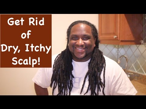 dry itchy scalp with dreads