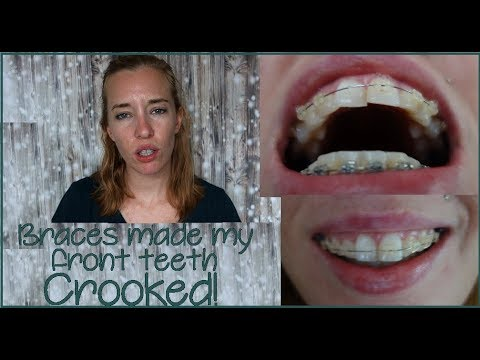 how to fix crooked front teeth