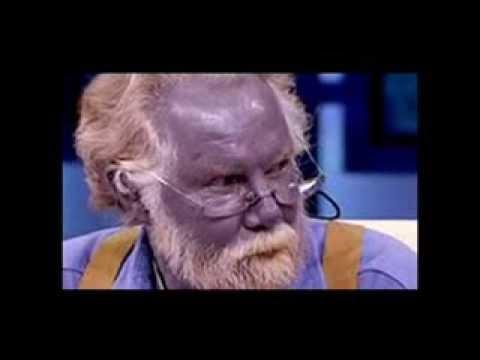 Muere 'Papá Pitufo', Paul Karason, el hombre con la piel azul.