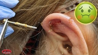 IS HER EAR PIERCING INFECTED!?