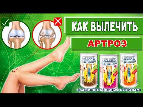 Лечение артроза Геленк нарунг питание суставов и лечение суставов в домашних условиях