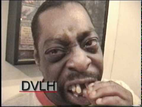 Beetlejuice S Teeth Before His Dentist Appointment To Remove Them Dvlh Youtube
