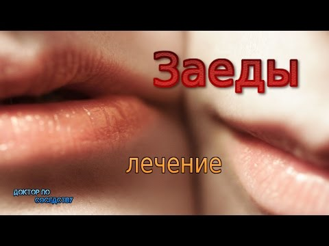 ЛЕЧЕНИЕ ЗАЕД / TREATMENT WHICH RESTORES STOMATITIS