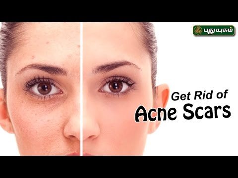 Ways To Remove Acne Scars & Pimple Marks அழகு கலை For Beauty Morning Cafe 16-05-17 PuthuYugamTV Show Online
