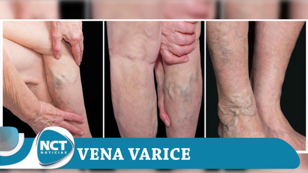 Download #SaludNctNoticias: Vena Varice