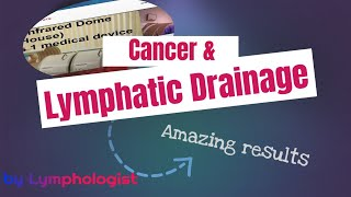 Cancer - lymphatic drainage massage - self manual lymphatic drainage for the leg - Melbourne