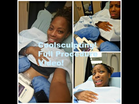 Coolsculpting: Freeze away fat! Full Procedure video!