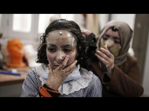 فيديو: أقنعة ثلاثية الأبعاد تعطي أملاً لضحايا حروق الوجه في غزة…  - نشر قبل 3 ساعة