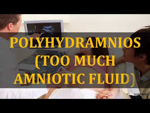 POLYHYDRAMNIOS TOO MUCH AMNIOTIC FLUID