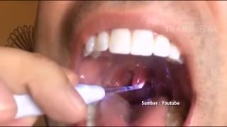 APA..??? Bakteri dalam rongga mulut  penyebab penyakit JANTUNG???.