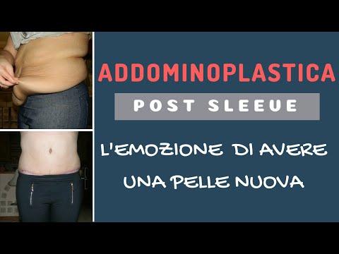 Addominoplastica Post- Sleeve ITALIA | ValentinaBONNY