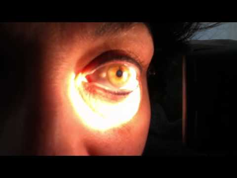 Hippus as a pupillary light response