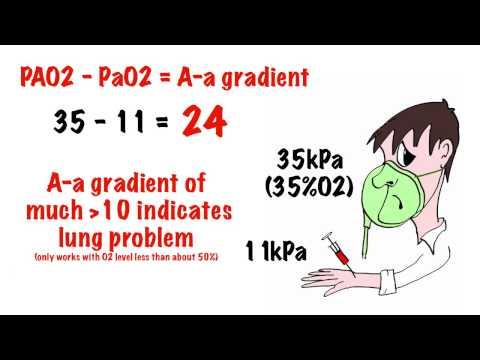 Basic arterial blood gas (ABG) interpretation