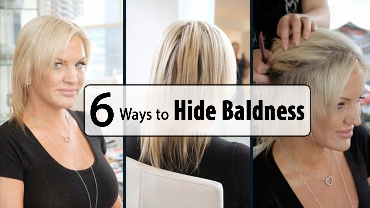 How to Hide Baldness - baldness cure tips - YouTube