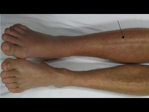 how-to-deal-with-deep-vein-thrombosis-dvt-|-deep-vein-thrombosis-treatment