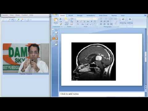 Radiology Spotter Part 11 Parinaud Syndrome