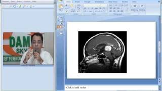 Radiology Spotter Part 11