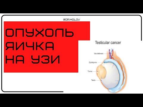 Опухоль яичка на УЗИ