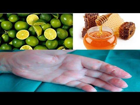 plantas medicinales contra el acido urico alto tengo acido urico puedo comer palomitas las lentejas dan acido urico
