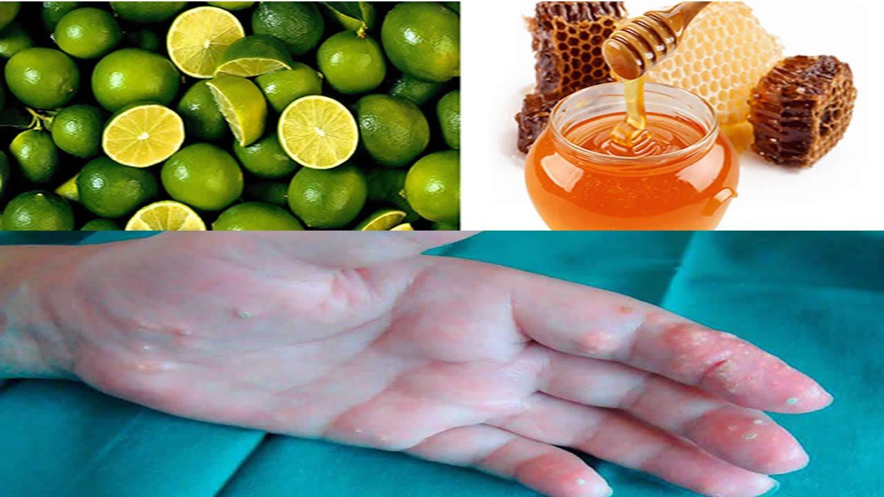 como tratar la gota o acido urico nas castanas asadas plovocan acido urico dietas para personas con colesterol y acido urico