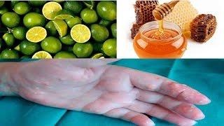 remedios para el acido urico alto productos para acido urico surimi de pescado acido urico