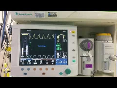 Recruitment With S 5 Avance Anesthesia Machine