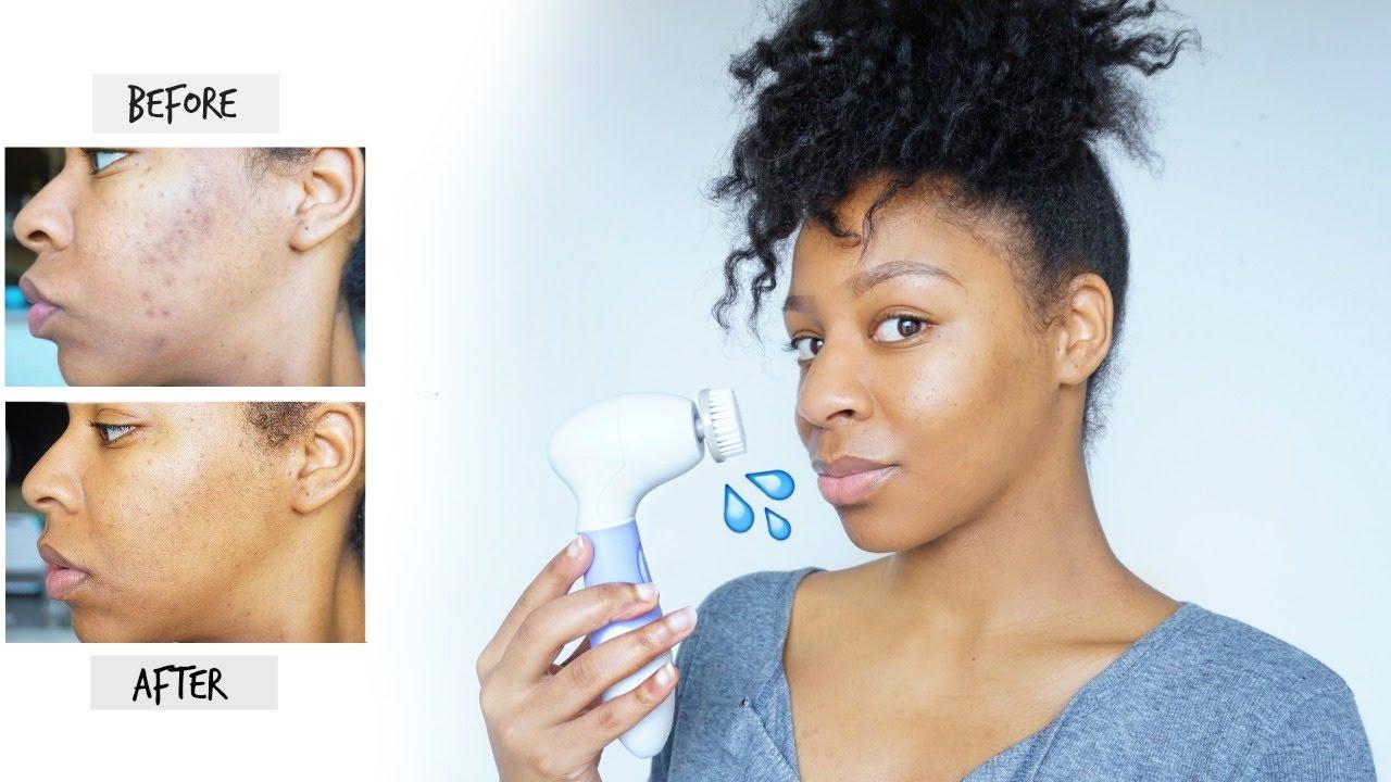How I Remove Dark Spots Acne Scars Skincare Routine For Hyperpigmentation