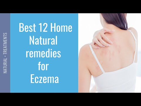 How to treat Eczema Naturally 🏡 home remedies for Eczema ✔️