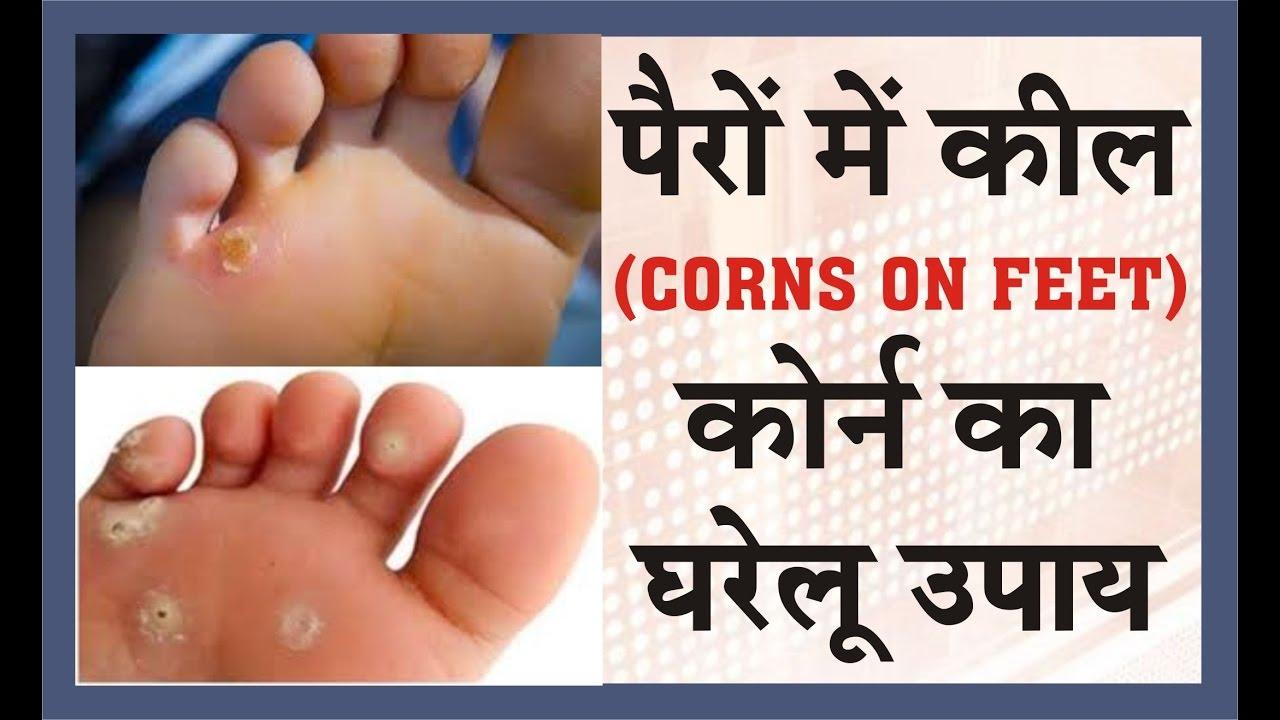 corn on feet home remedy hindi
