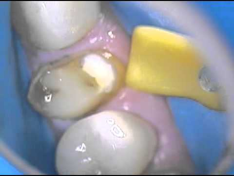 2. Replacement of an old PFM crown with an all porcelain eMax crown -a step by step process