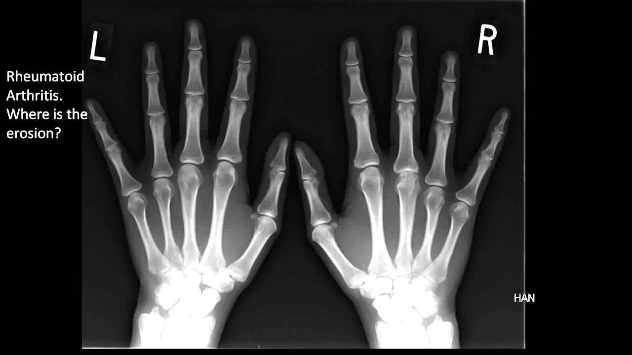 Image of the Month April 2011: Rheumatoid Arthritis X-Ray ...